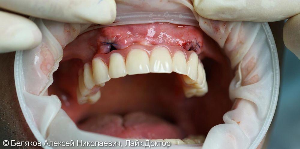 Имплантация и протезирование временным протезом - фото №5