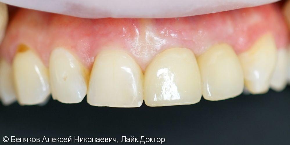 Одномоментная имплантация двух передних зубов - фото №7