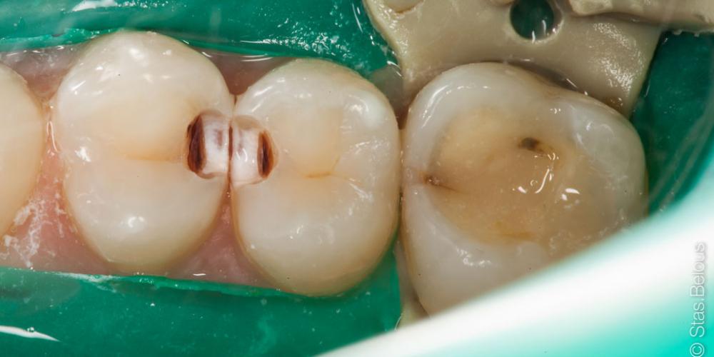 Кариес на контактных поверхностях зубов один из самых коварных - фото №1
