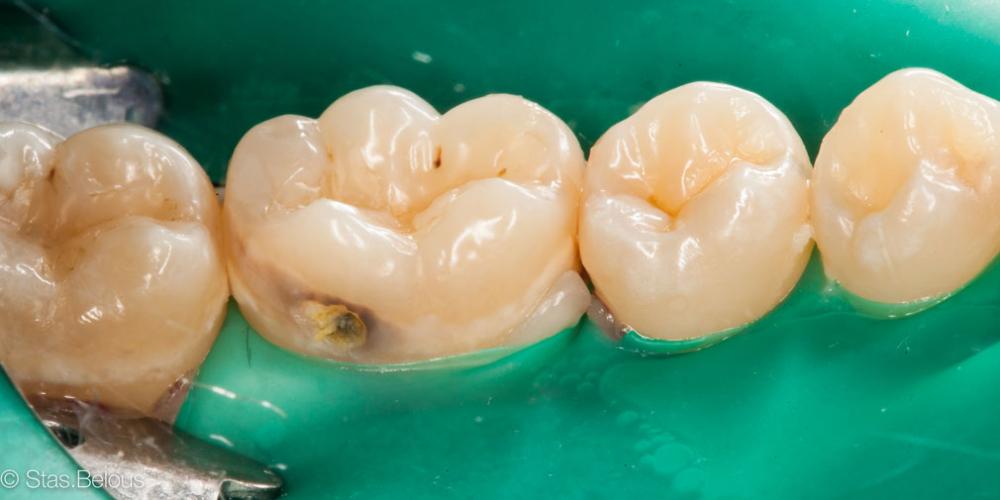 Сладкоежки - будте бдительны, кариес 46 зуба - фото №1