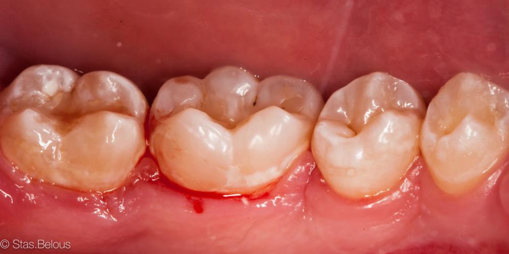 Сладкоежки - будте бдительны, кариес 46 зуба - фото №2