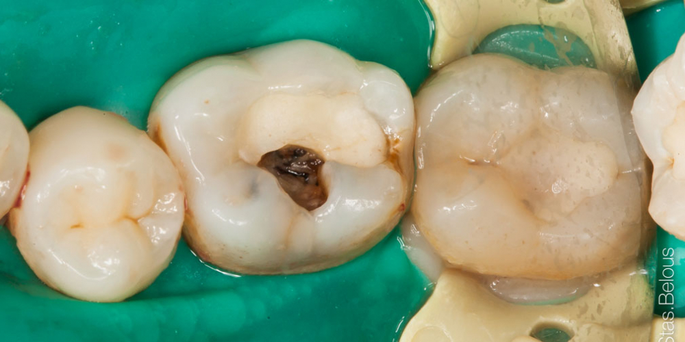 Лечение глубокого кариеса 36 и 37 зуба - фото №1