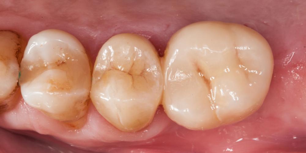 Протезирование зуба после имплантации - фото №6