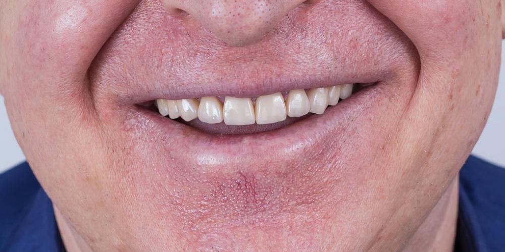 Полное воссоздание верхнего зубного ряда