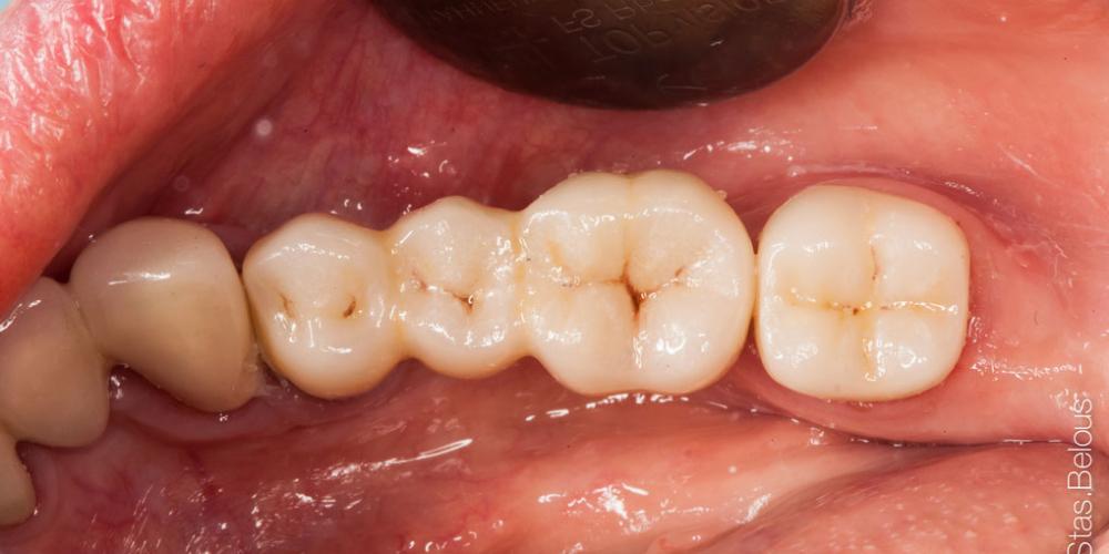 Протезирование зубов на имплантантах - фото №4
