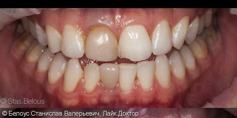 Протезирование верхней челюсти по технологии Все-на-четырех фото до лечения