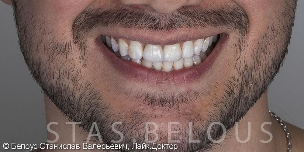 Протезирование верхней челюсти по технологии Все-на-четырех фото после лечения