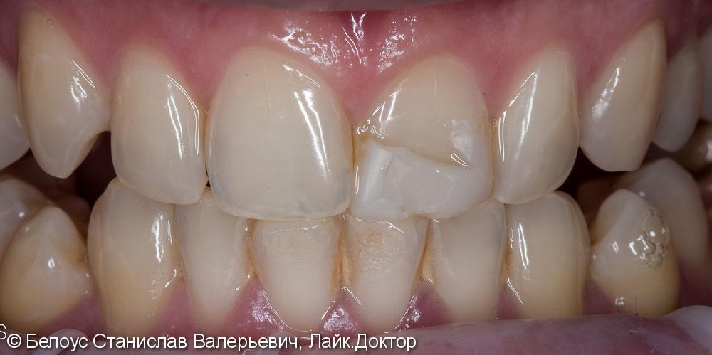 Цельнокерамическоая коронка по технологии Emax CAD на передний зуб фото до лечения