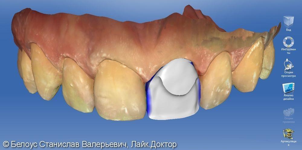 Цельнокерамическоая коронка по технологии Emax CAD на передний зуб - фото №3