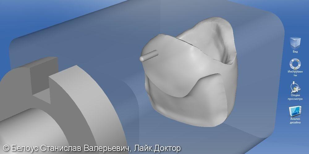 Цельнокерамическоая коронка по технологии Emax CAD на передний зуб - фото №4