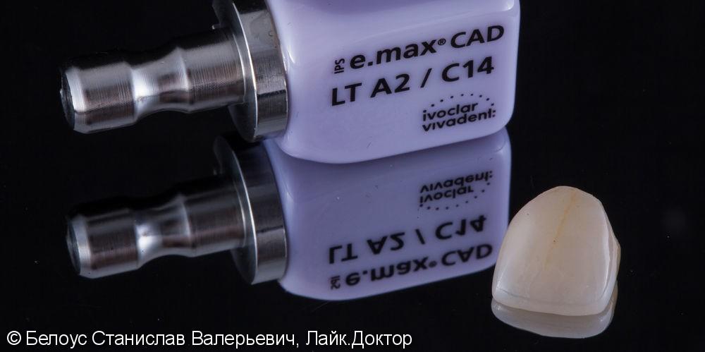 Цельнокерамическоая коронка по технологии Emax CAD на передний зуб - фото №6