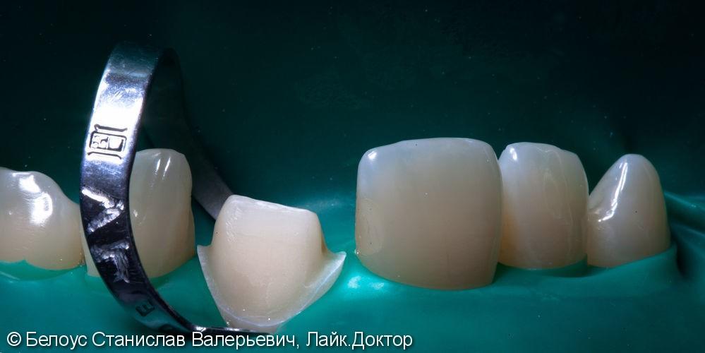 Цельнокерамическоая коронка по технологии Emax CAD на передний зуб - фото №10