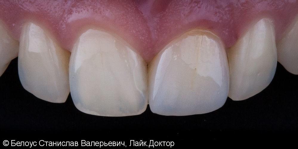 Цельнокерамическоая коронка по технологии Emax CAD на передний зуб фото после лечения