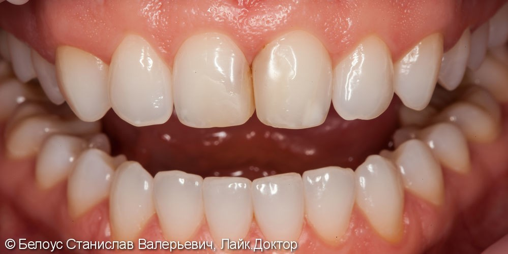 Керамические коронки на передние зубы 11 и 21, результат до и после - фото №1