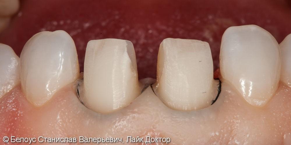 Керамические коронки на передние зубы 11 и 21, результат до и после - фото №5