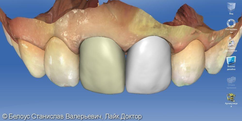 Керамические коронки на передние зубы 11 и 21, результат до и после - фото №6