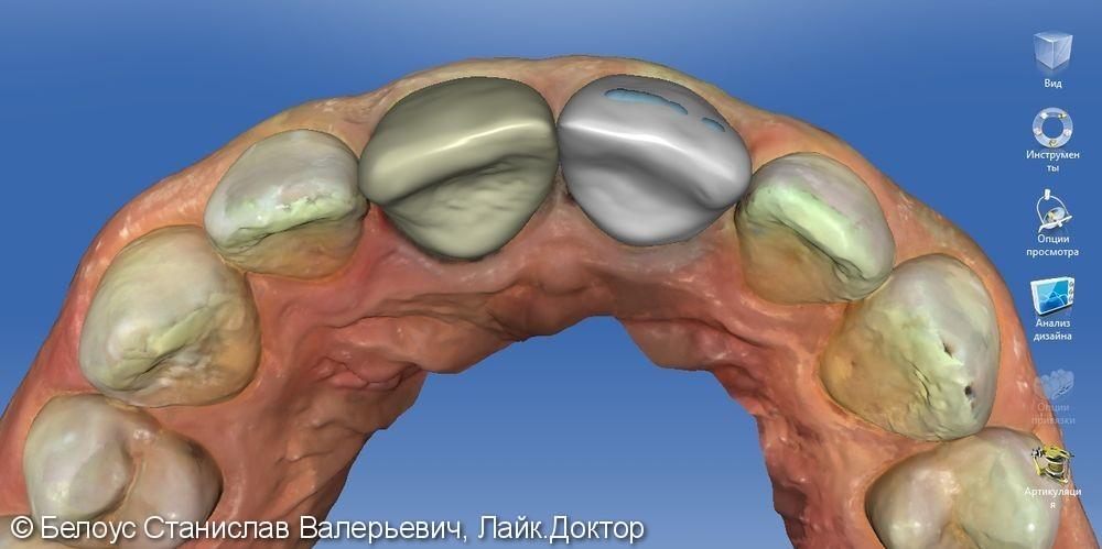 Керамические коронки на передние зубы 11 и 21, результат до и после - фото №7