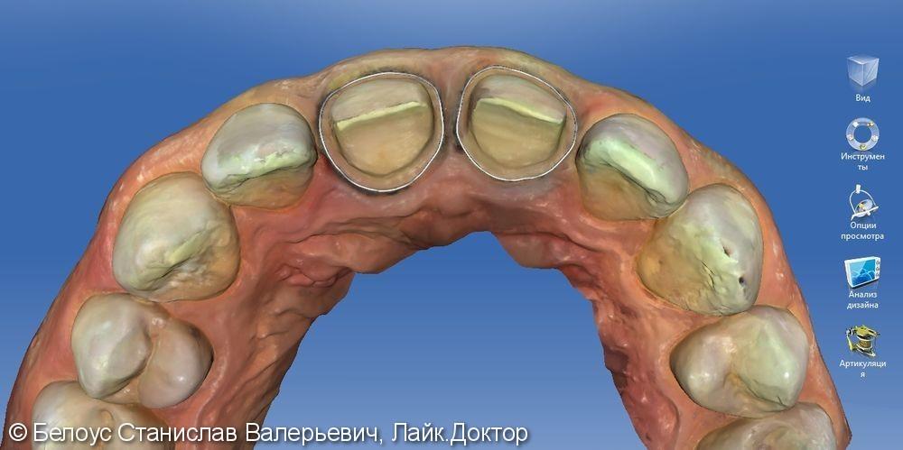 Керамические коронки на передние зубы 11 и 21, результат до и после - фото №8