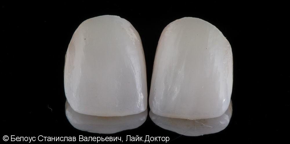 Керамические коронки на передние зубы 11 и 21, результат до и после - фото №10