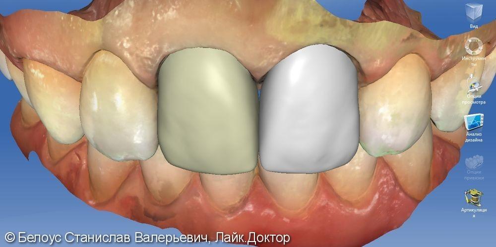 Керамические коронки на передние зубы 11 и 21, результат до и после - фото №11
