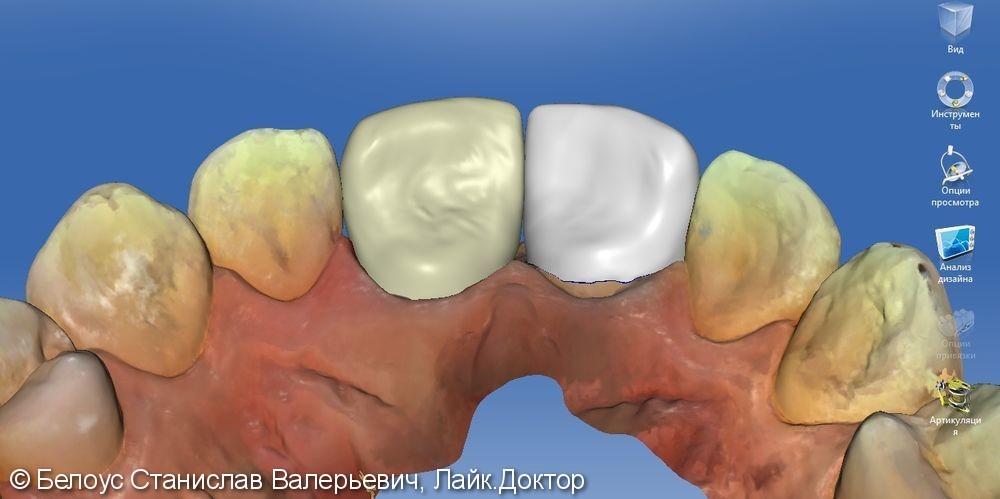 Керамические коронки на передние зубы 11 и 21, результат до и после - фото №13