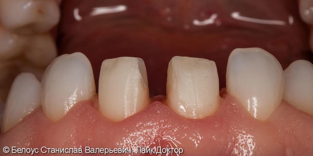Керамические коронки на передние зубы 11 и 21, результат до и после - фото №14