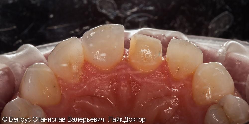Керамические коронки на передние зубы 11 и 21, результат до и после - фото №16