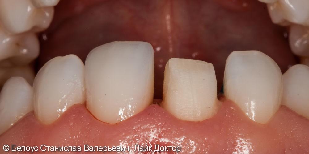 Керамические коронки на передние зубы 11 и 21, результат до и после - фото №17