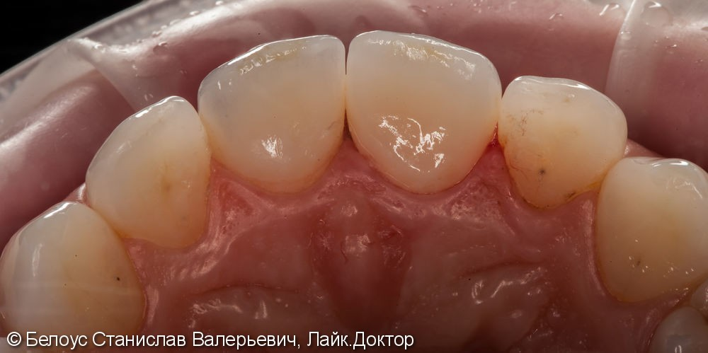 Керамические коронки на передние зубы 11 и 21, результат до и после - фото №18