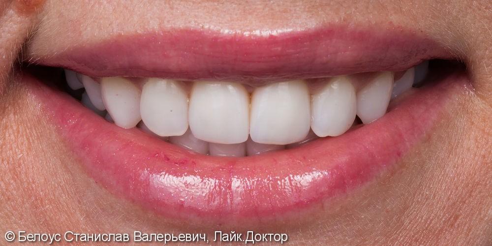 Керамические коронки на передние зубы 11 и 21, результат до и после - фото №21