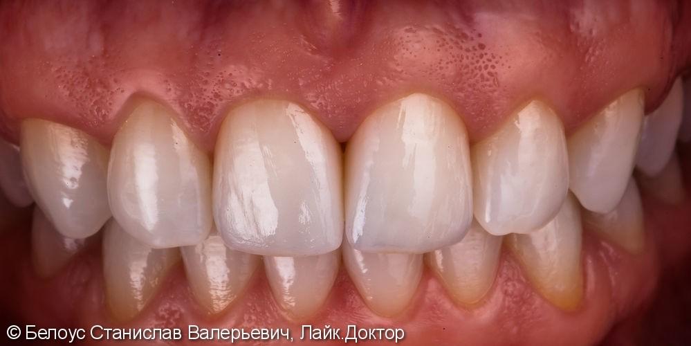 Керамические коронки на передние зубы 11 и 21, результат до и после - фото №22