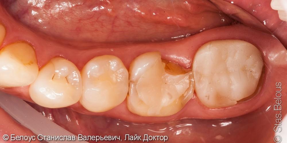 Установка коронок Cerec на жевательные зубы 46 47, до и после фото до лечения