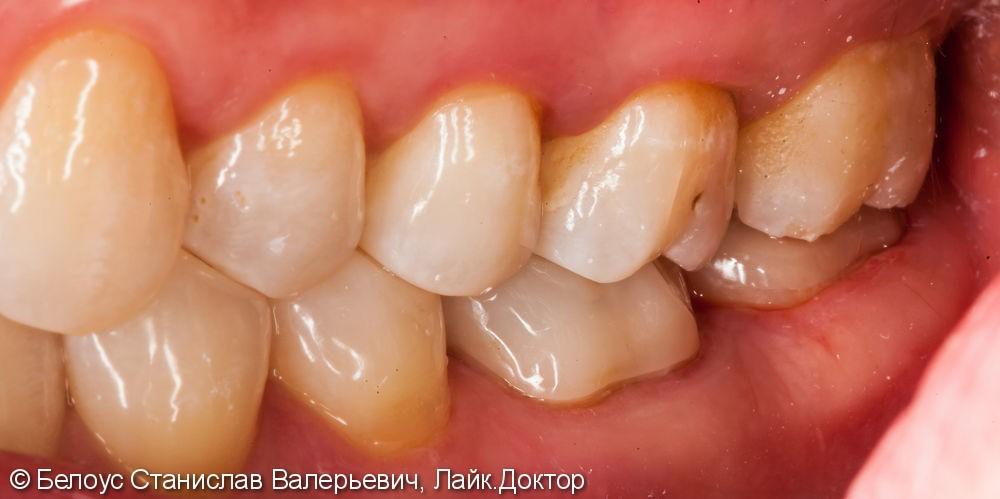 Установка коронок Cerec на жевательные зубы 46 47, до и после - фото №5