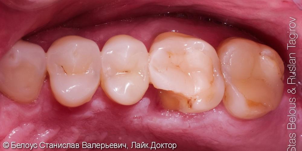 Установка CAD/CAM коронок по технологии CEREC на зубы, Часть 1 - фото №1