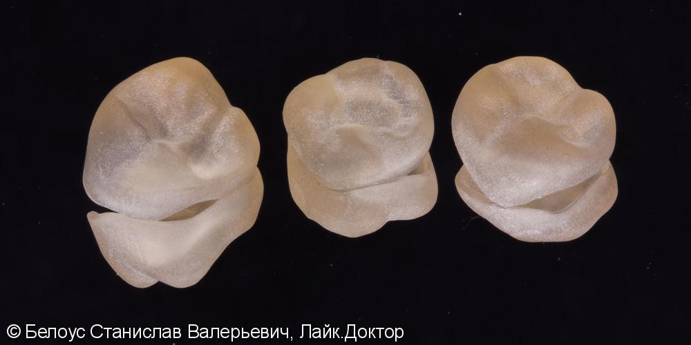 Установка CAD/CAM коронок по технологии CEREC на зубы, Часть 1 - фото №4