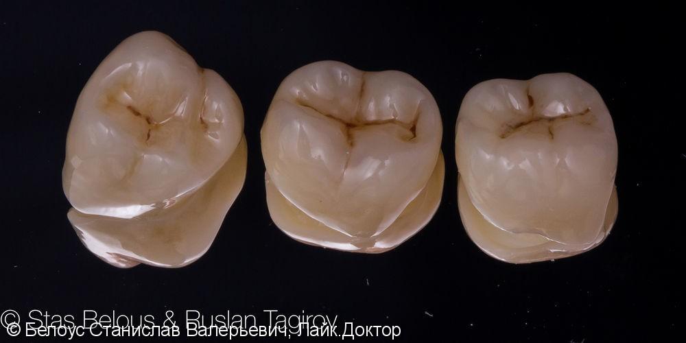 Установка CAD/CAM коронок на коренные зубы 16, 46, 47 Часть 2 - фото №3