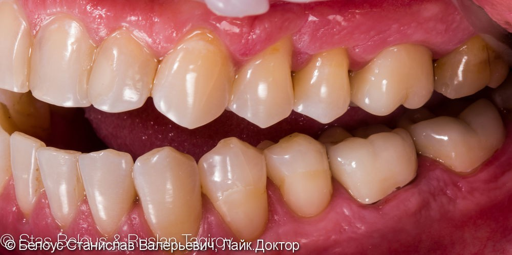 Установка CAD/CAM коронок на коренные зубы 16, 46, 47 Часть 2 - фото №4