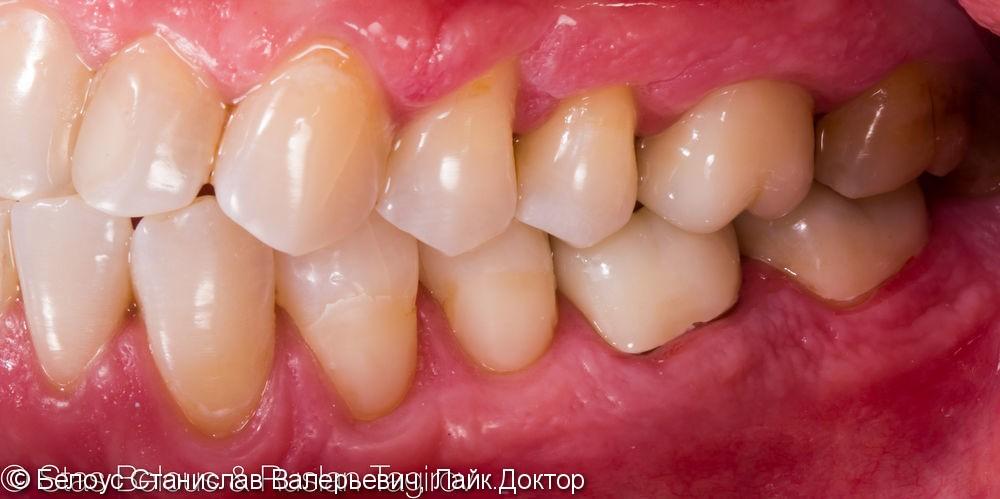 Установка CAD/CAM коронок на коренные зубы 16, 46, 47 Часть 2 - фото №5