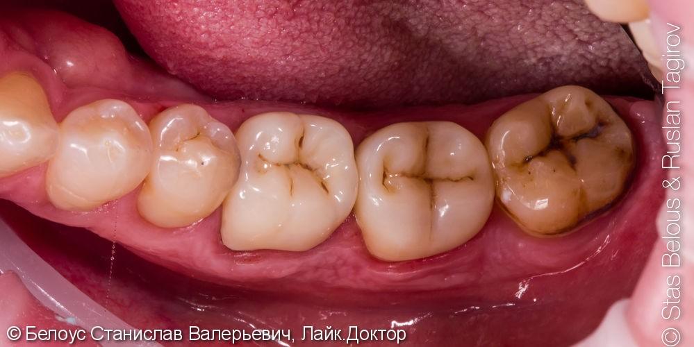 Установка CAD/CAM коронок на коренные зубы 16, 46, 47 фото после лечения