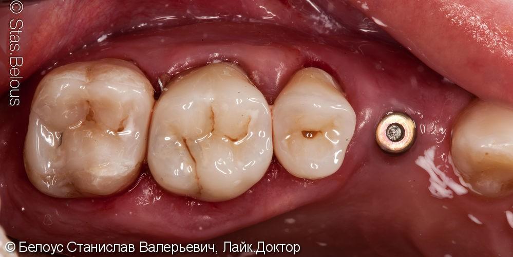Лечение кариеса и установка коронок на жевательные зубы - фото №9