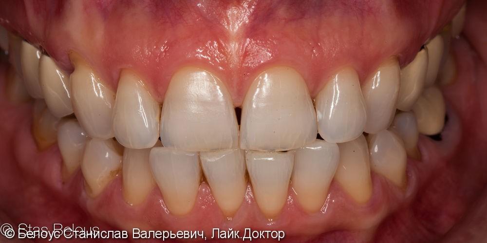 Отбеливание зубов в домашних условиях, результат через 3 года - фото №4