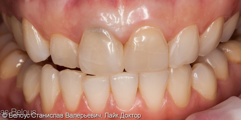 Четыре винира на передние зубы за 2 дня, фото до и после