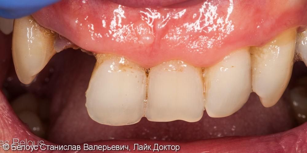 Керамические коронки Церек на передние зубы, до и после - фото №1