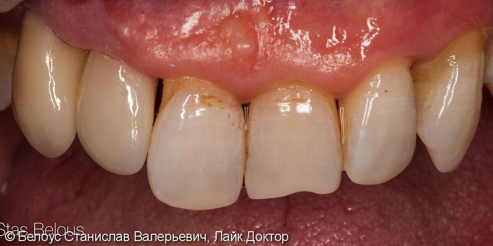 Керамические коронки Церек на передние зубы, до и после - фото №10