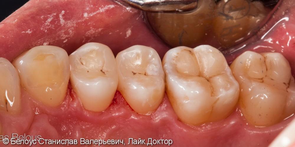 Срочное лечение кариеса на двух зубах в одно посещение, до и после - фото №4