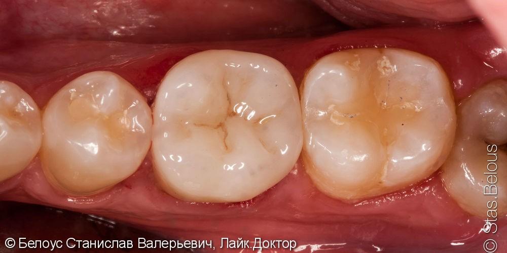 Заболел жевательный зуб, больно на него нажимать, до и после - фото №7