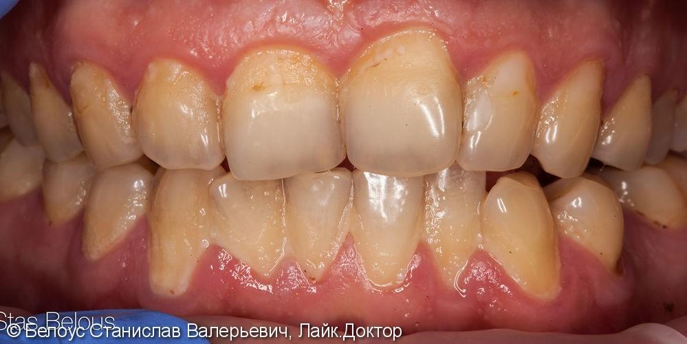 Результат профессиональной чистки зубов, до и после - фото №1
