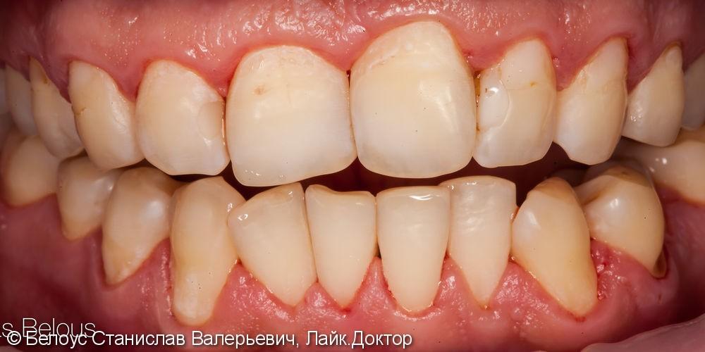 Результат профессиональной чистки зубов, до и после - фото №2