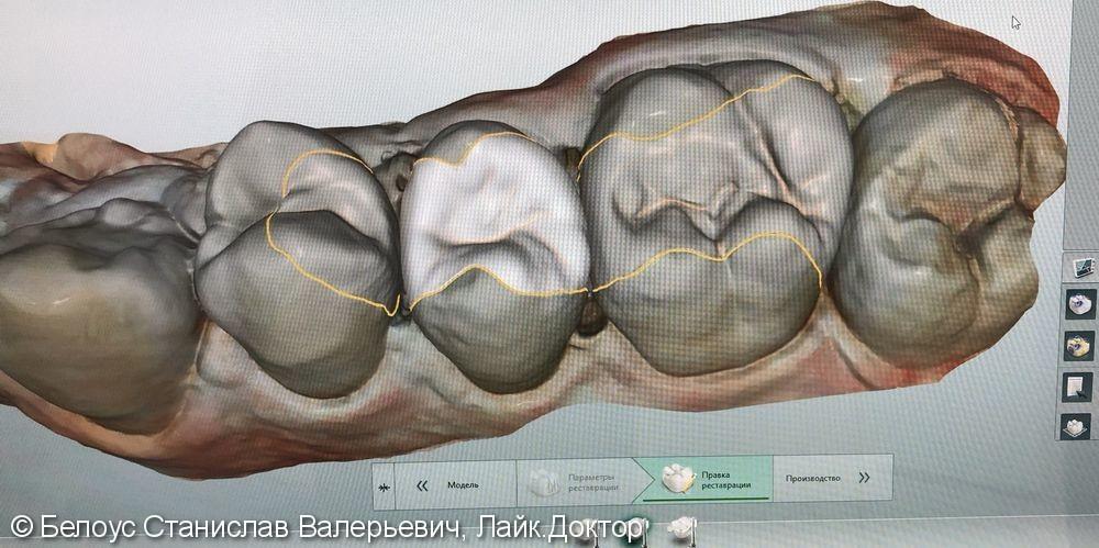 Реставрация полностью разрушенного зуба по цифровому CAD/CAM протоколу, до и после - фото №1