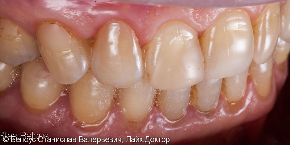 Винир на сколотый передний зуб 12, до и после - фото №7